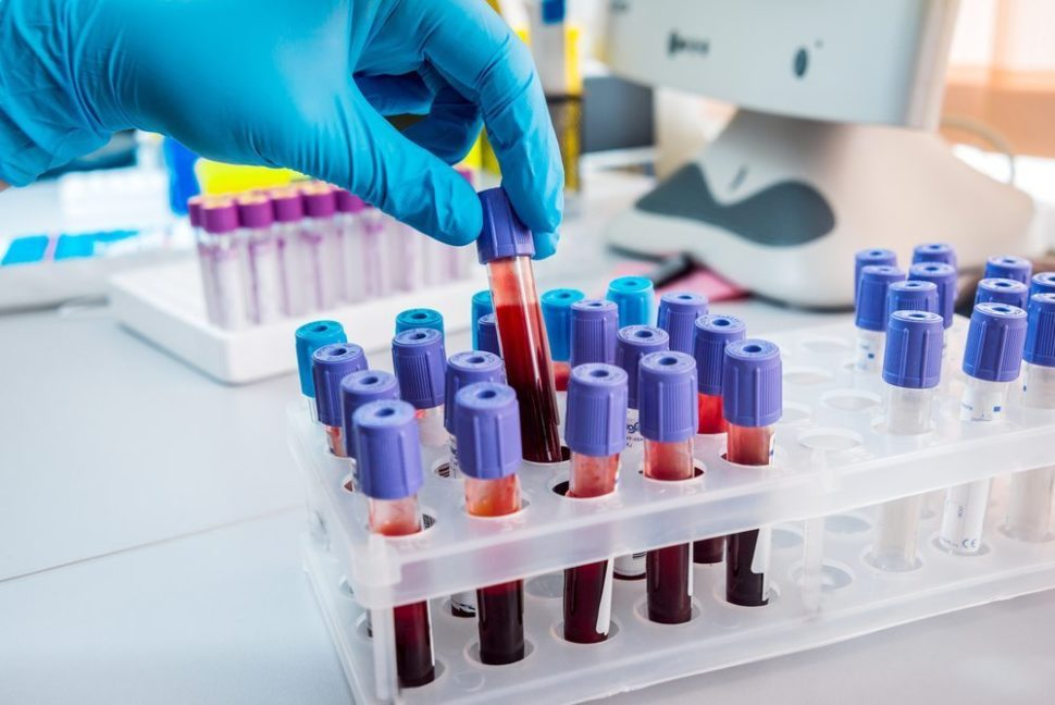A new process could lead to researchers being able to transform all blood types into Universal type O | Image by Romaset | Shutterstock.com