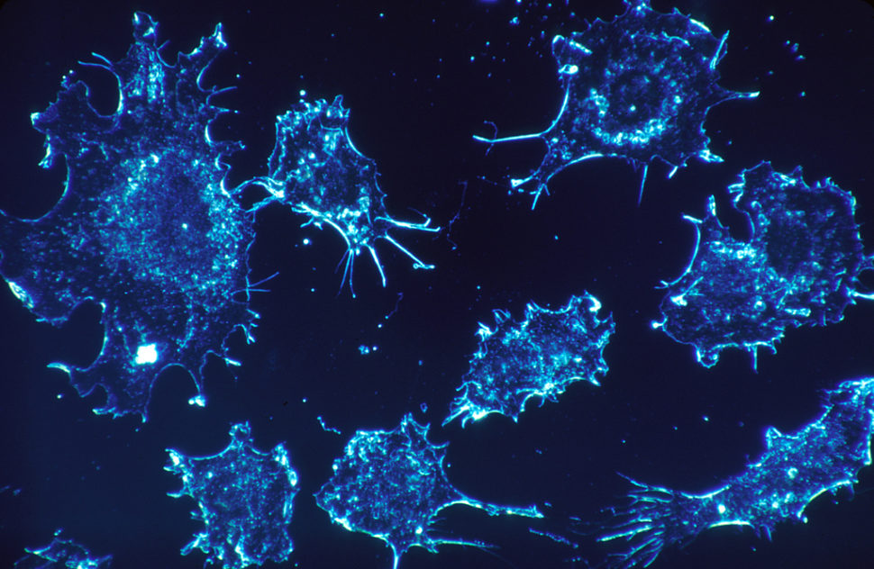 Cancer cells | Wikimedia Commons | commons.wikimedia.org