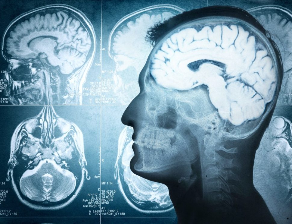 It's crazy to think about just how powerful the brain really is. | Triff | Shutterstock.com