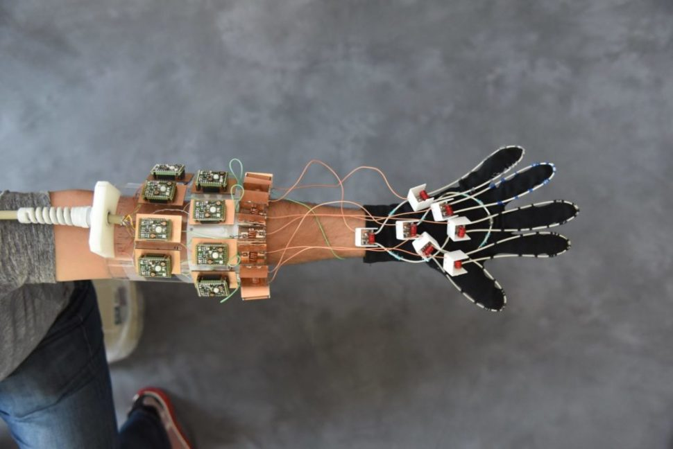 New MRI device shaped like a glove. | NYU School of Medicine via Techxplore.com