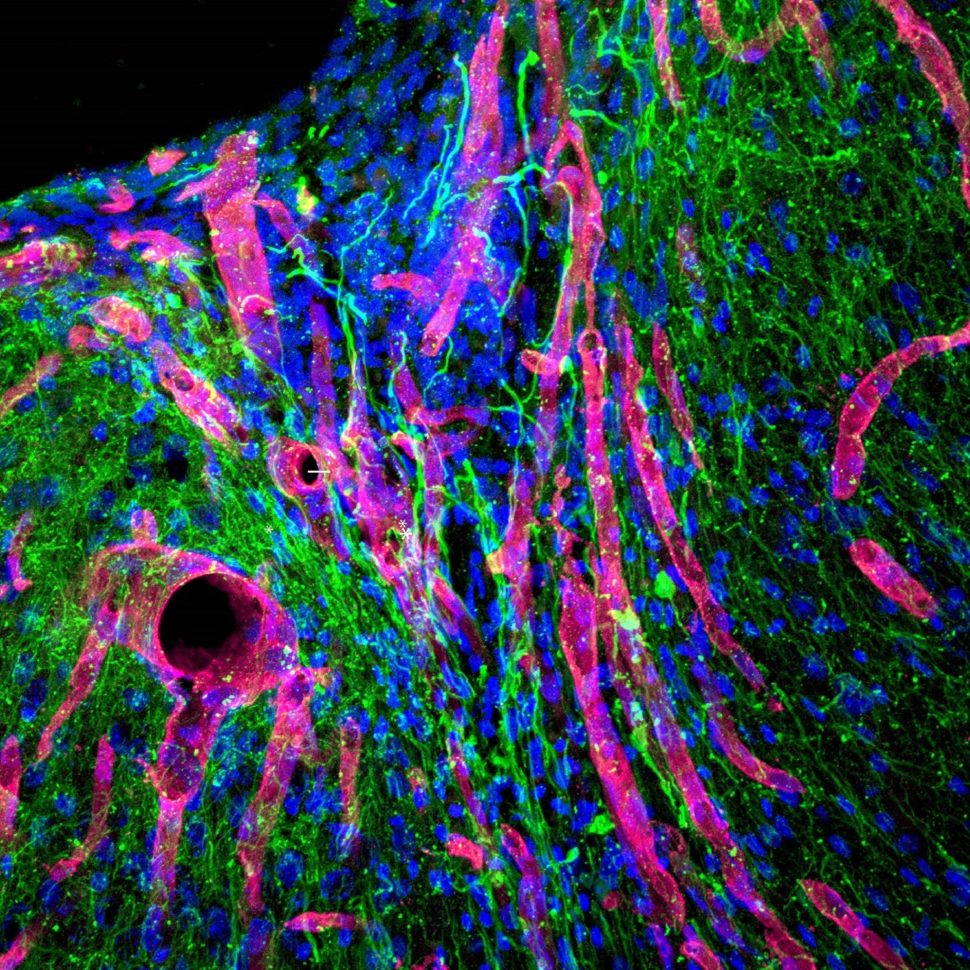 Strokes and other forms of brain trauma or injury are one of the most prevalent and dangerous health issues in our society. Now, researchers may have found a solution to the damage caused by this trauma | Photomicrograph via UCLA Health