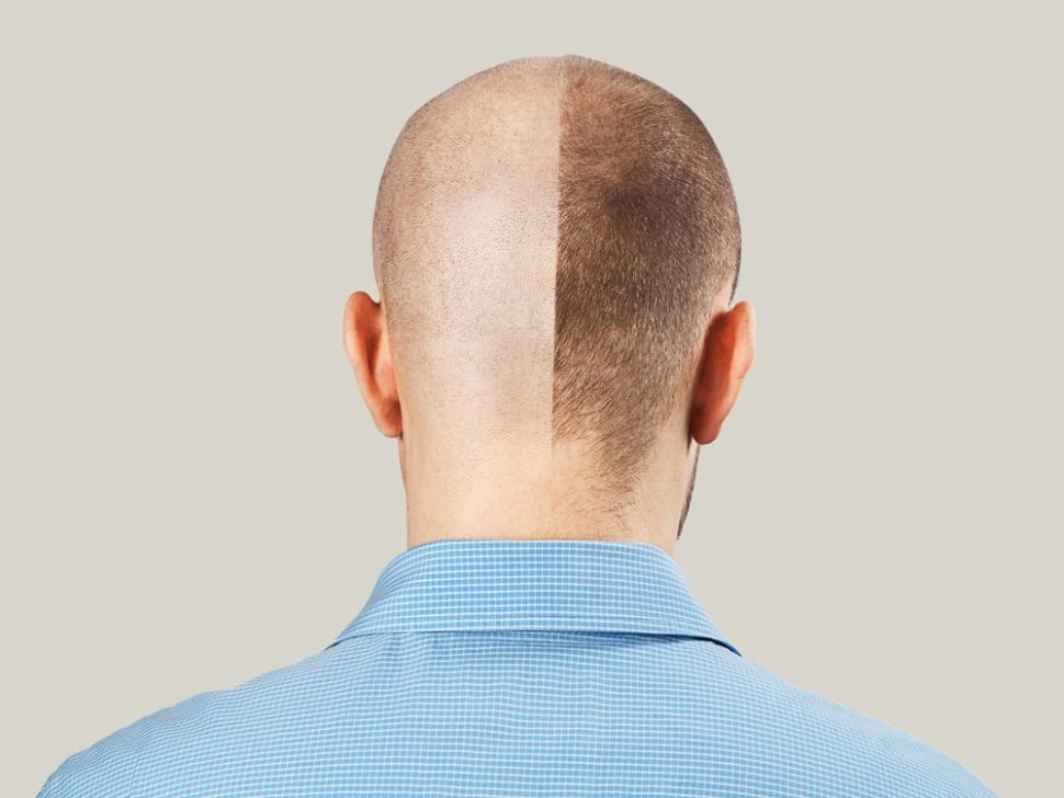 Researchers may have found a way of treating hair loss in certain conditions. | Image By Vikafoto33 | Shutterstock