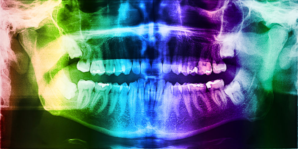 Researchers may have found a link between gum disease and Alzheimer's. | Image By Radu Bercan | Shutterstock