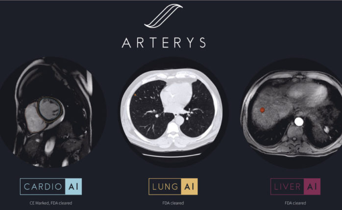 Arterys expands its clinical offerings with two new AI-powered workflows for medical imaging interpretation ¦ Image via Arterys
