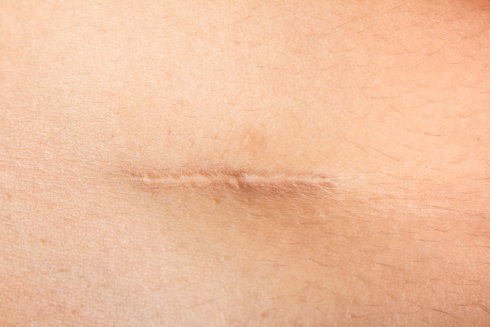 This new technique will help surgeons significantly reduce the amount of scarring caused by surgeries. ¦ Shutterstock